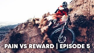 MTB INJURIES: The trunk. | Pain vs Reward E5