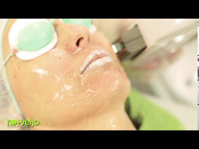 Rejuvenare faciala cu IPL- antirid, anti-pete, anti-acnee