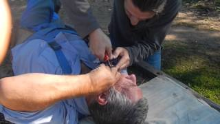 стоматолог в отпуске(удаление зуба пассатижами ,лежа на телеге)(стоило только обмолвиться о своей профессии и было не возможно отказать - пришлось помогать болящему., 2013-08-20T19:01:30.000Z)