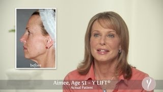 Y LIFT ® 2013 - Aimee | Instant, Non Surgical Facelift