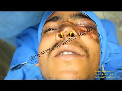 Nasal Fracture reduction under Local Anaesthesia