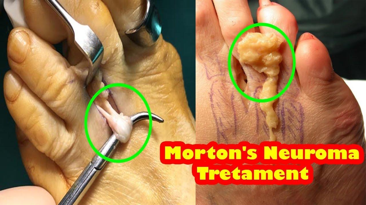 d68d640f27 morton's neuroma - What is it, symptoms, treatment, exercises, surgery -  how to treat morton's neuro