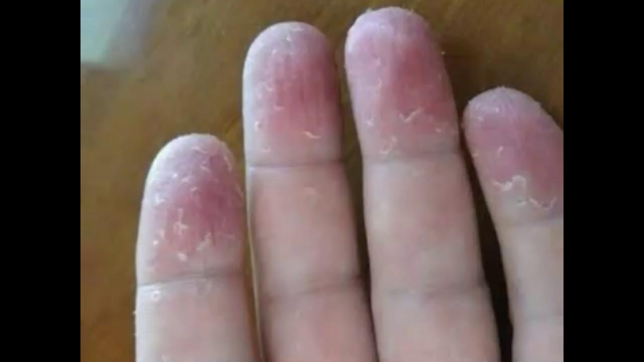Manos tratamiento y en dermatitis pies
