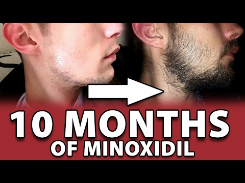 Minoxidil Beard | 10 MONTHS! | Week 44 | Crazy Goat Beard Oil Released| #Facialfuzzfridays