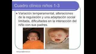 Trastorno por Deficit de Atención, Hiperactividad e Impulsividad, Felix Higuera