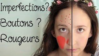 DIY peau à problèmes (boutons, rougeurs, couperose, imperfections, grasse,…) - 🌸150