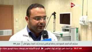 فيديو..مستشفى الكبد المصري: نقدم خدمة لغير القادرين باستخدام أحدث المعدات