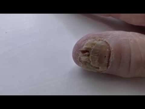 severe fungal nail infection affecting mainly the thumb nail
