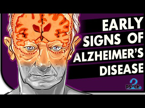 11-early-signs-of-alzheimer's-disease