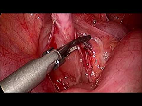 Pediatric Appendectomy 2