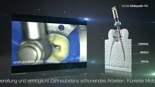 Minimalinvasive Aufbereitung mit der HyFlex™ EDM 10/.05 Gleitpfad Feile