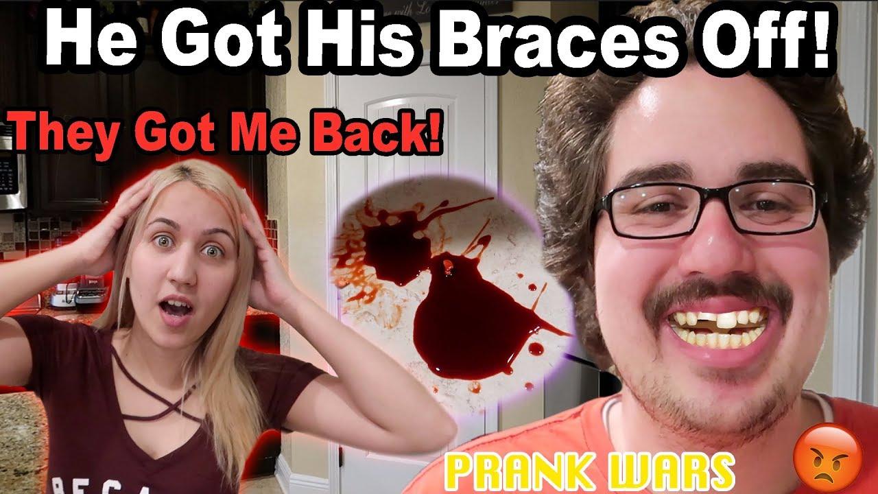 broke-his-teeth-prank-logan-s-idea