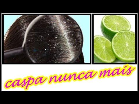 ♥Como acabar com a CASPA com apenas R$ 3,00 Reais