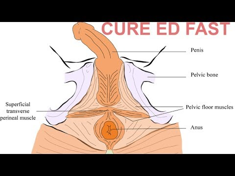 Effective Exercise To Cure Erectile Dysfunction Naturally At Home | Exercise To Cure ED thumbnail