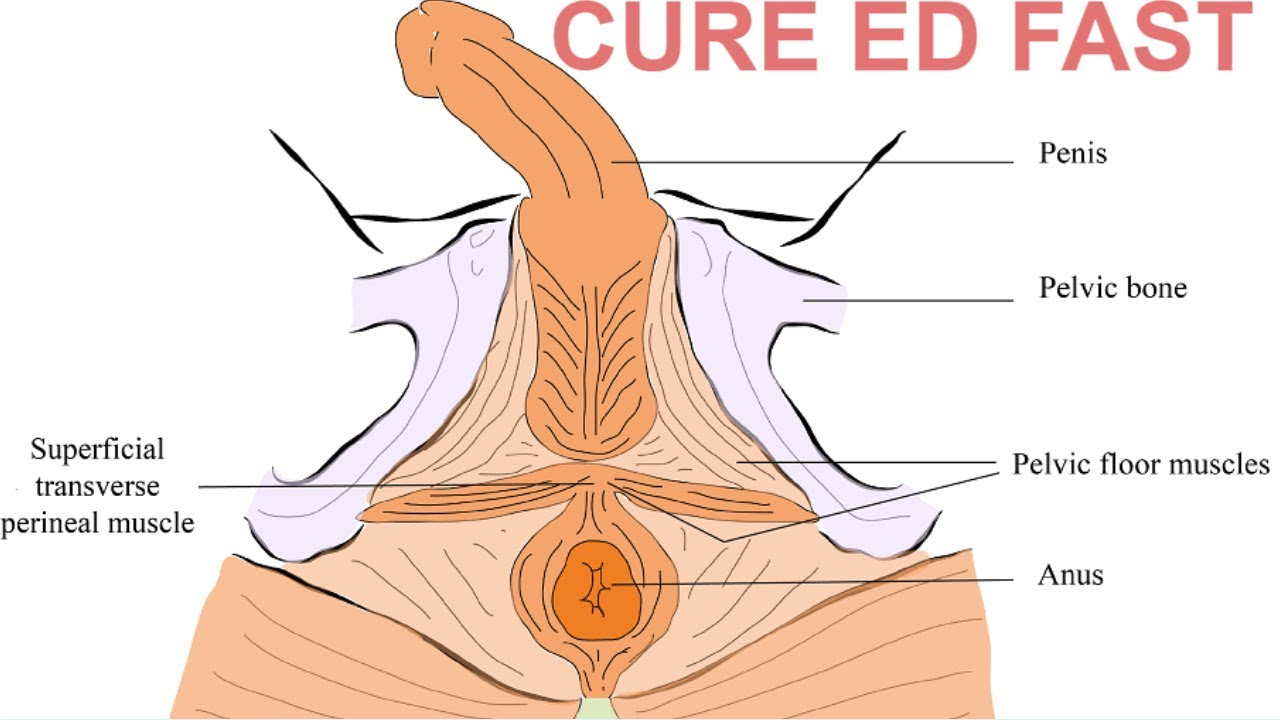 Effective Exercise To Cure Erectile Dysfunction Naturally At Home | Exercise To Cure ED