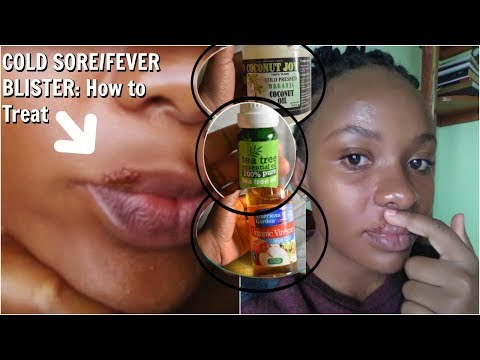 How I Treated This COLD SORE /FEVER BLISTER NATURALLY OVERNIGHT Plus My Cold Sore Stages