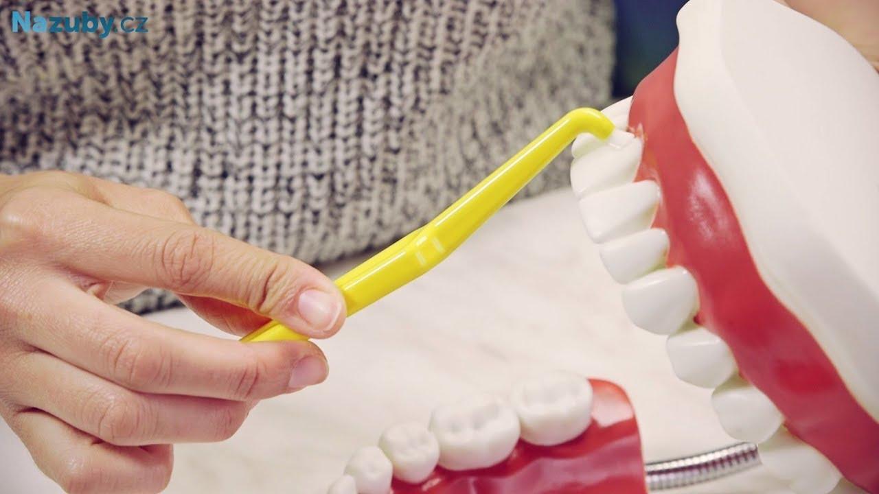 Čištění zubů jednosvazkovým kartáčkem