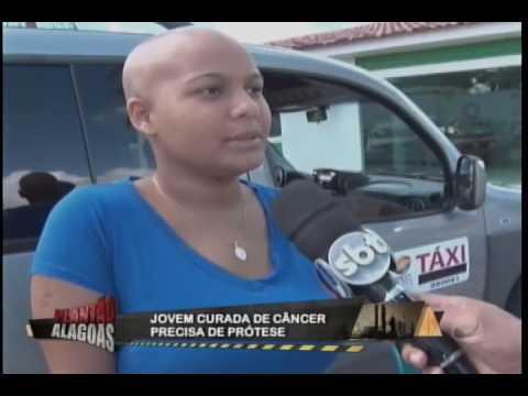 Jovem curada do câncer precisa de uma protese