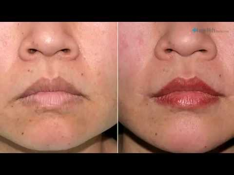 Rhinoplasty Surgery Things You Should Know Expert Guide