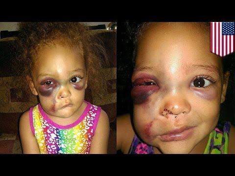 Девочку избили в детском саду