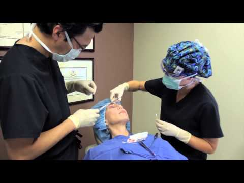 In Office Eyelid Surgery Performed by Virginia Beach surgeon  Dr. Choe