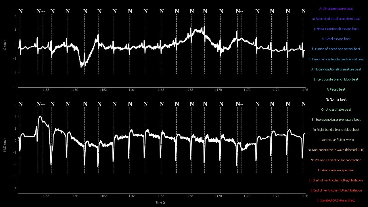 Electrocardiogram MIT-BIH Arrhythmia Database N°108 with tag anotations