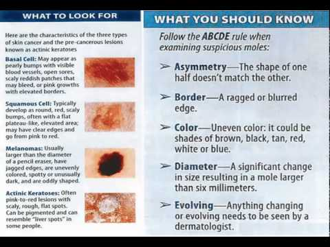 Four Types Of Skin Cancer Youtube