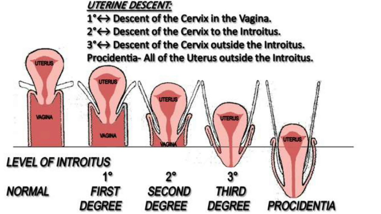 Uterine Prolapse Latest