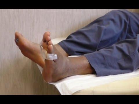 diabetes e piaghe tra le dita dei piedi en mezzo