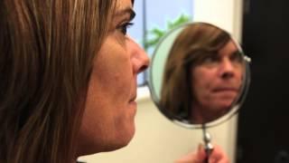 Vancouver lower eyelid blepharoplasty documentary | Katie part 1:2