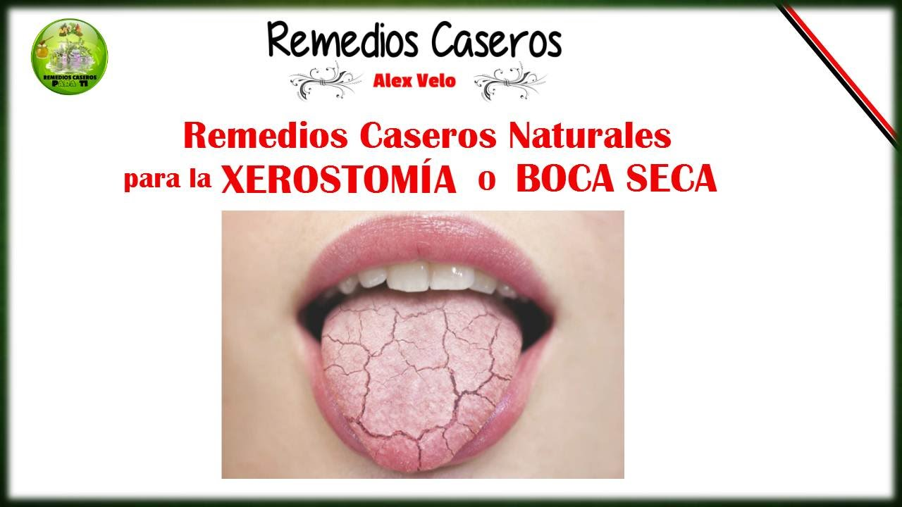 Remedios caseros naturales para la xerostomia o boca seca - Sequedad de boca remedios naturales ...