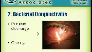 conjunctivitis mpeg1at7k