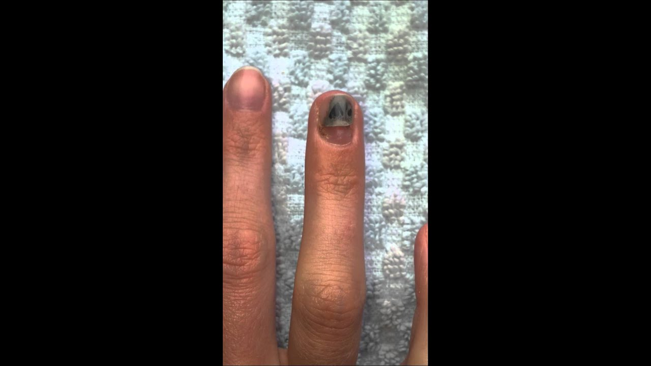 Smashed finger in door, nail coming off - YouTube