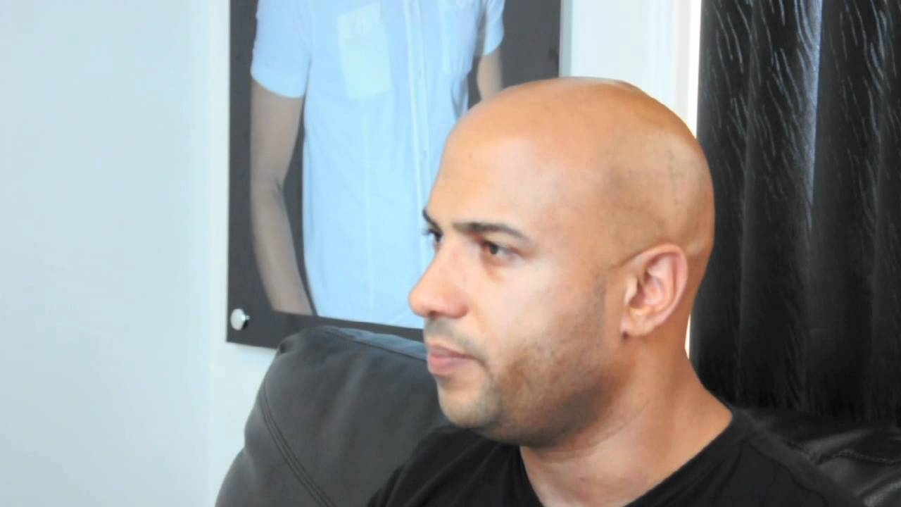 His Hair Clinic Vince From Minnesota Hair Loss Story