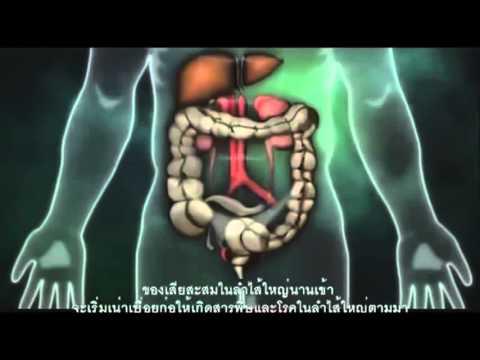 สาเหตุและต้นเหตุของการเกิดโรคมะเร็งและโรคต่างๆ Phytovy ช่วยคุณได้
