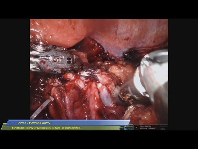 Benjamin I. Chung - Partial Nephrectomy with subtotal ureterectomy for duplicated system