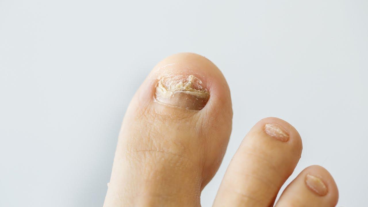 remedio natural para los hongos de las unas de los pies