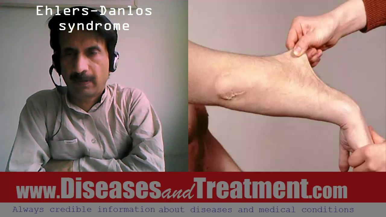 turners syndrome symptoms treatment and prognosis essay