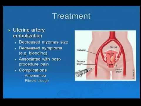 Gynecological Problems: Case Study Approach (Dr  Joyce King) Part 2