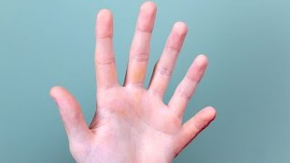 SIX FINGERS ON HAND!