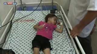 وقف لعمليات جراحة القلب في غزة