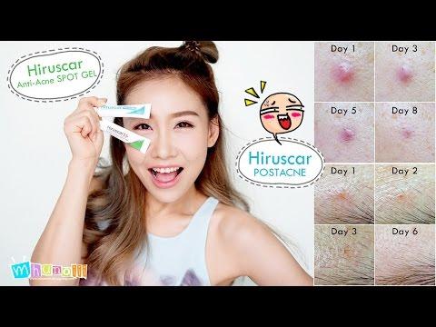 Review : Hiruscar Anti-Acne SPOT GEL & Hiruscar POSTACNE สิวยุบรอยสิวจาง....ปัญหาสิวเรื่องจิ๋วๆ
