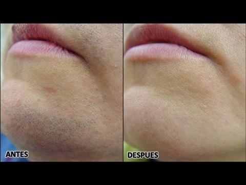 Elimina El Vello Facial Para Siempre Con Productos Caseros Youtube