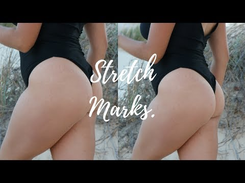 How To Deal With Stretch Marks // SELF LOVE