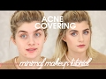 How To Cover-up Acne: Minimal Makeup Tutorial | Raquel Mendes