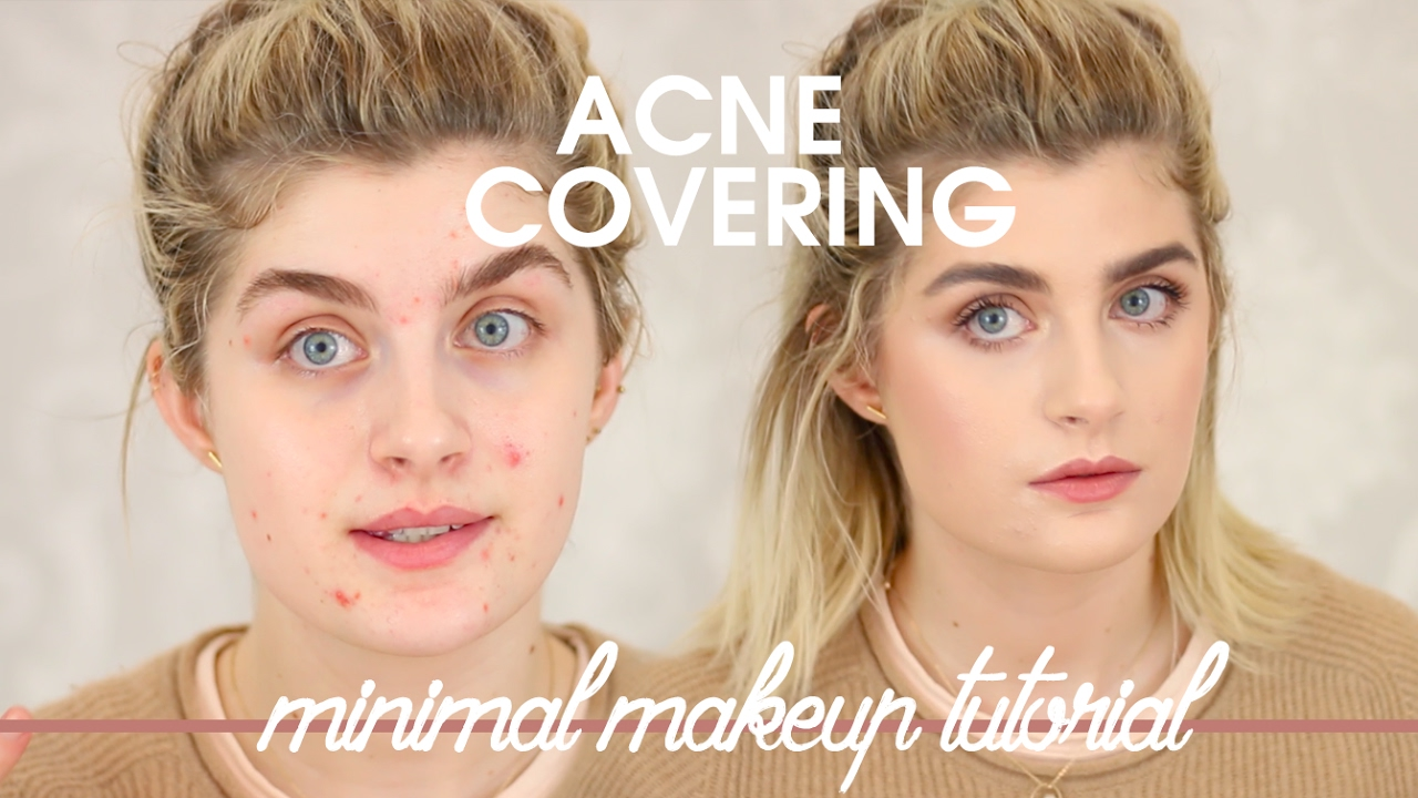 This viral acne makeup tutorial is suddenly causing controversy.
