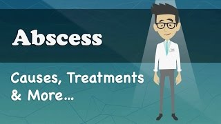 Abscess Causes Treatments More