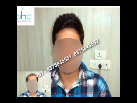 Best non surgical hair replacement systems cost for men in delhi best non surgical hair replacement systems cost for men in delhi ncr noida gurgaon india pmusecretfo Choice Image
