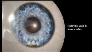 Our Best Overview of a Ziemer LASIK Femtosecond Laser Procedure