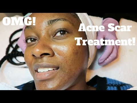 My Dermatology Acne Scar Treatment! | Microneedling Experience